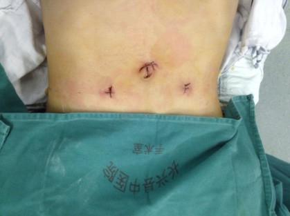 腹腔镜下腹股沟疝修补术(TAPP)--新技术